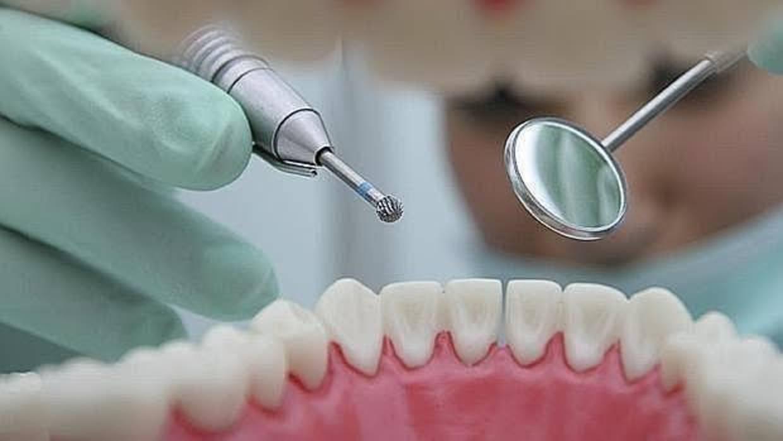 Las bacterias causantes de la periodontitis también aumentan el riesgo de cáncer de esófago
