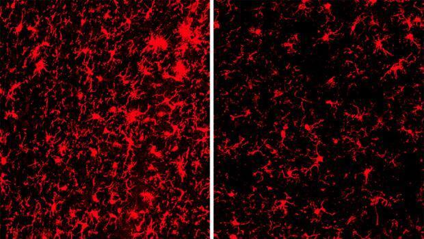 TREM2, la proteína del yin y el yang en alzhéimer