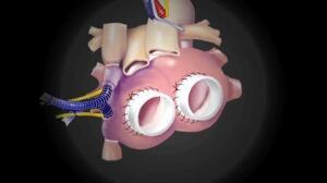 Implantado en España un corazón artificial total