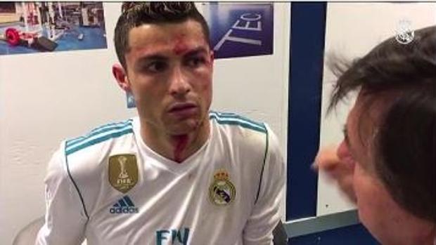 Así fue la cura de Cristiano Ronaldo