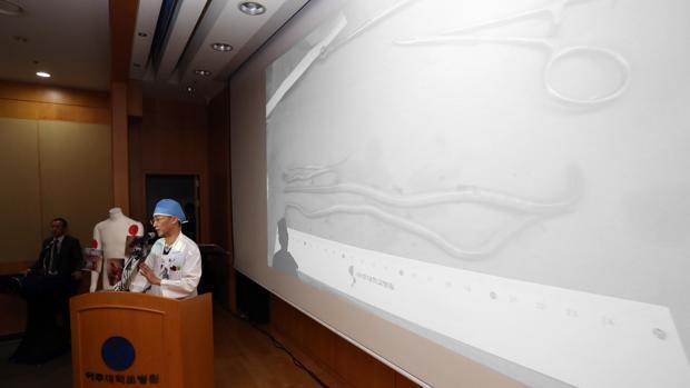 El desertor norcoreano tenía una lombriz de 27 centímetros y un gran número de parásitos