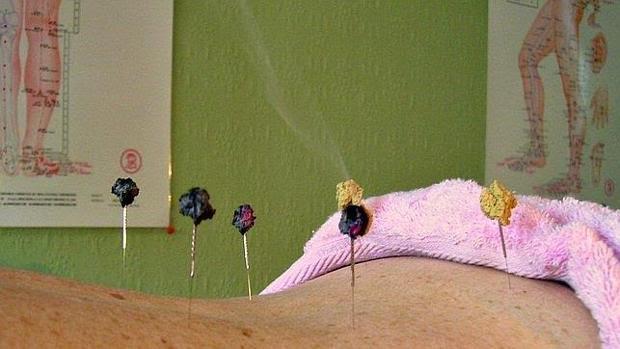 La acupuntura es útil en el alivio del dolor articular en el cáncer de mama más común