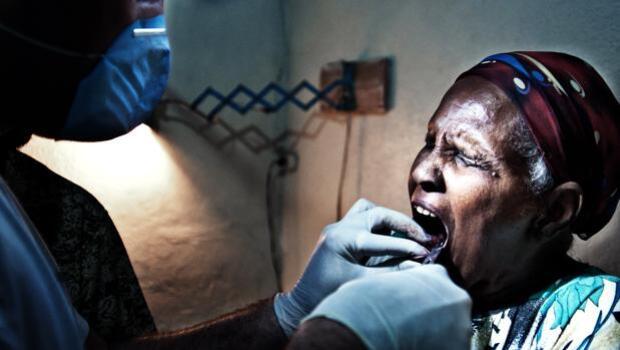 Denthiopía o cuando una infección bucal se puede llevar una vida