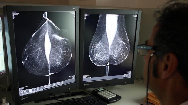Colon, próstata, pulmón y mama suman la mitad de cánceres en Castilla y León