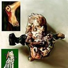 Primera prueba antropológica de la crucifixión
